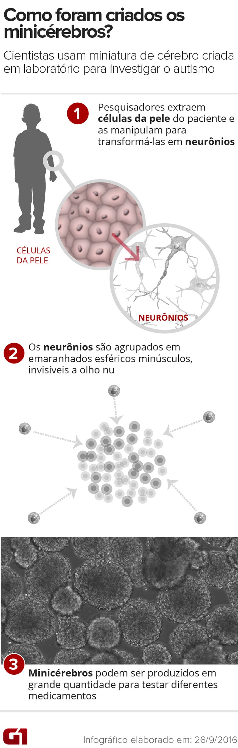 Minicérebros (Foto: Editoria de Arte/G1)